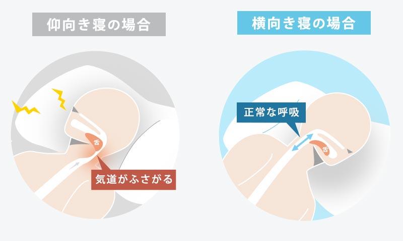 仰向き寝の場合は、気道がふさがりやすいが、横向き寝の場合は、舌が落ち込むのを防ぐため正常な呼吸がしやすい。